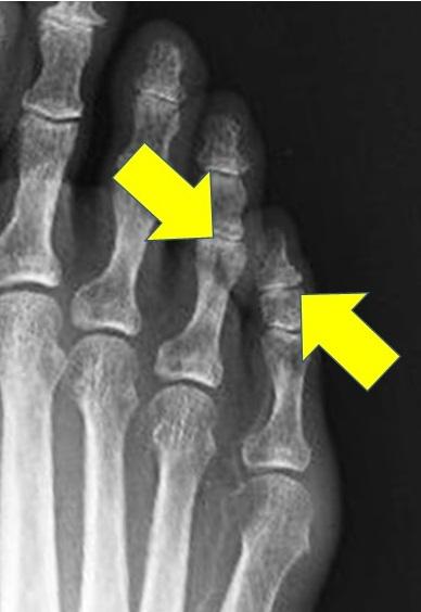 足趾の間の胼胝のイメージ