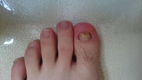 割れる 爪 足 小指 の