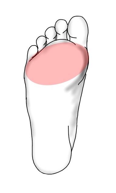 足のしびれの範囲イメージ